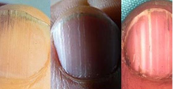 8 Health Warnings Your Fingernails May Be Sending